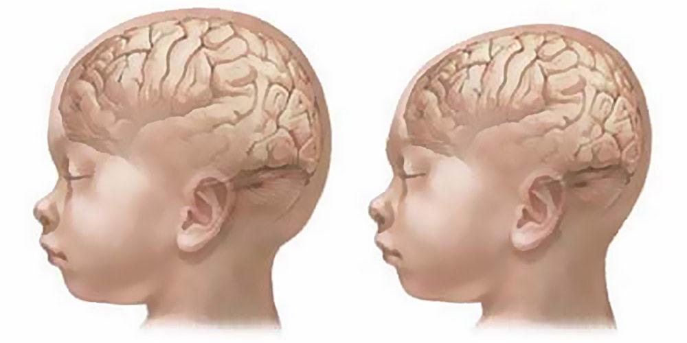 Мальформации черепа