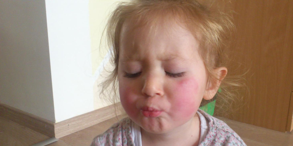 Сыпь при роже и ее диагностика