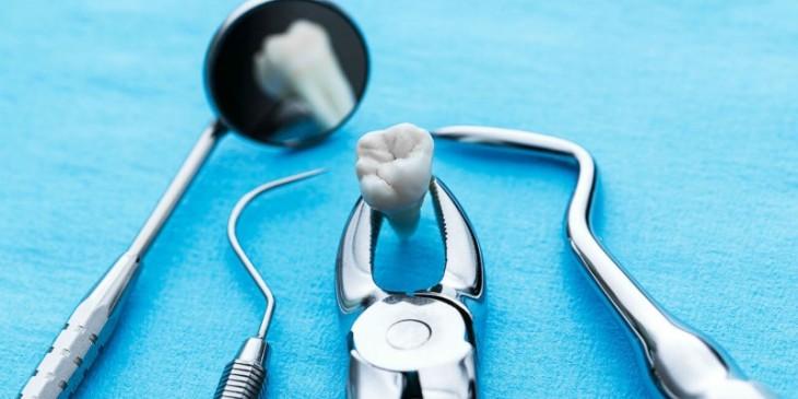 Медицинские инструменты для удаления зуба