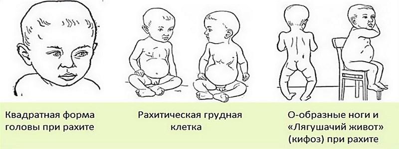Признаки рахита у ребёнка