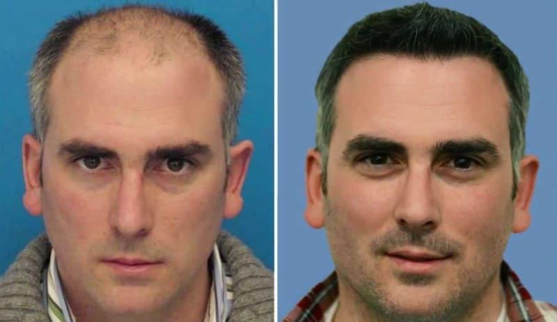 Мужчина с восстановленными волосами