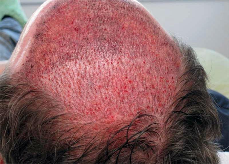 Восстановление корней волос у мужчины