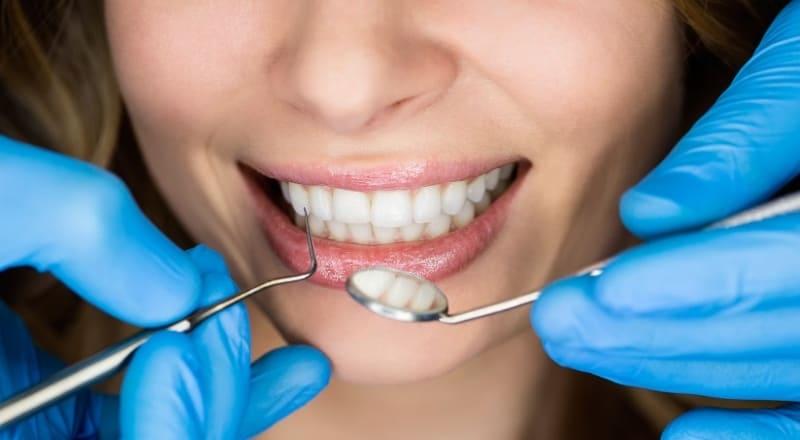 Положительные стороны имплантации зубов