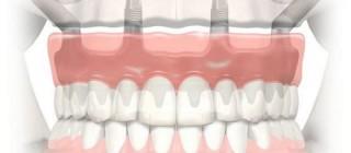 Как восстановить зубы верхней челюсти быстро и без проблем