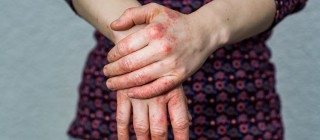 Лечение дерматитов народными средствами