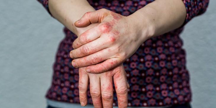 eczema-3