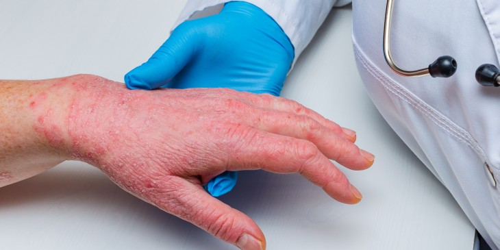doctor in gloves examines the skin of the hand of a sick patient. Chronic skin diseases - psoriasis, eczema, dermatitis.